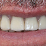 Case Study: Upper Jaw Implant Bridge