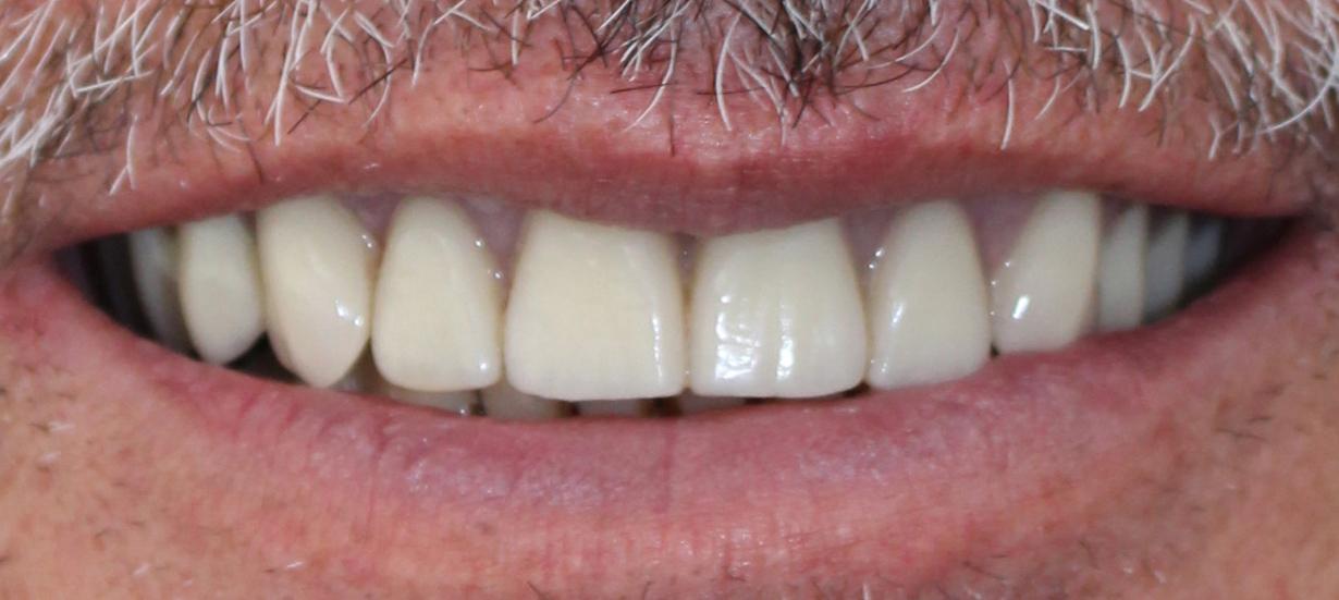 Case Study Upper Jaw Implant Bridge Northland