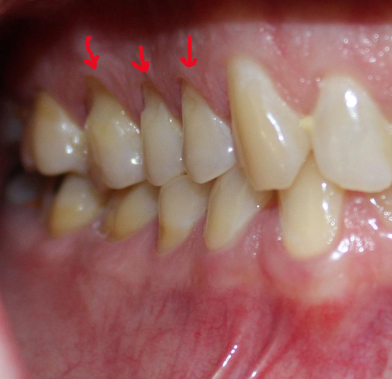 acid wear on teeth how to fix it