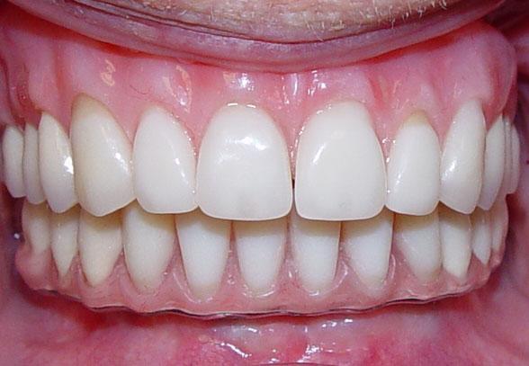How Much Are Dentures >> Implant Bridges - Northland Prosthodontics - Northland Denture Specialist - Whangarei