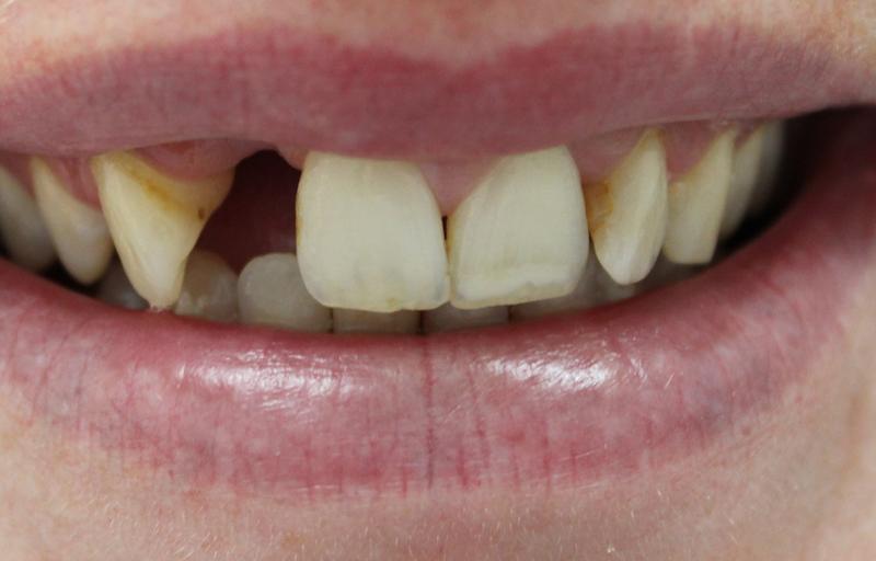 Bridges - Northland Prosthodontics - Northland Denture