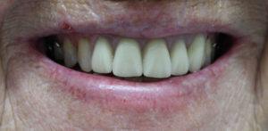 1-can-you-spot-upper-partial-denture