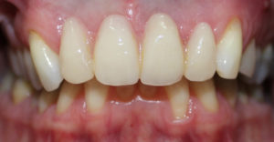 2-can-you-spot-upper-partial-denture