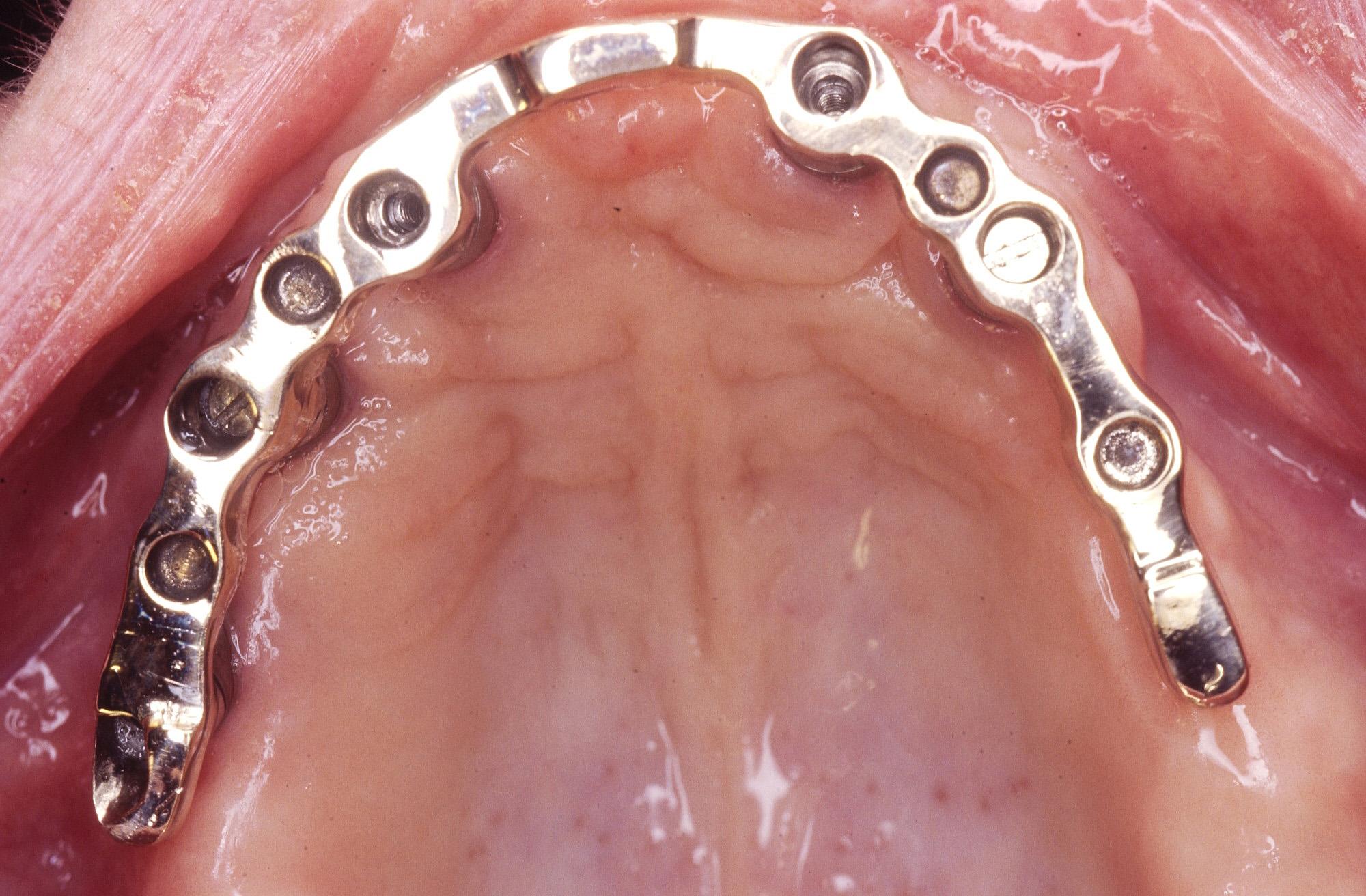 Implant Dentures Complete Northland Prosthodontics