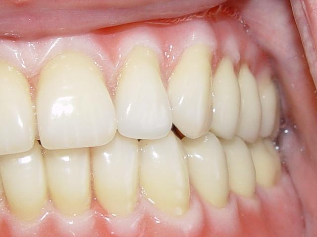 Complete Dentures - Northland Prosthodontics - Northland Denture