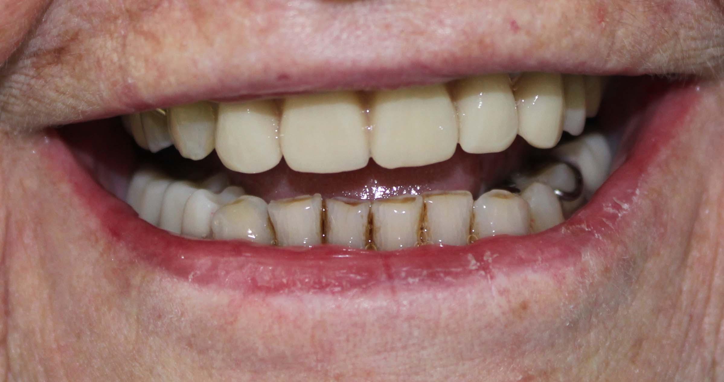 Partial Dentures Plates Northland Prosthodontics