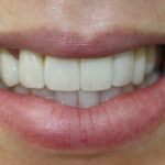 CASE STUDY -REPLACEMENT UPPER CROWNS